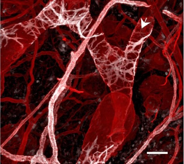 Naczynia limfatyczne uwidocznione przy użyciu mikroskopii konfokalnej.